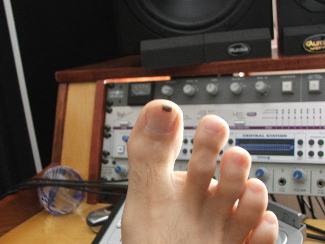 worst injury during a gig or session? - Gearslutz